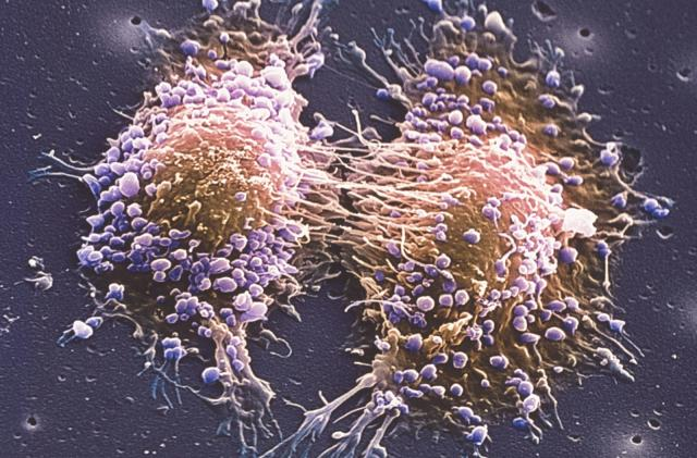 Prostate cancer laser treatment cures half of trial subjects