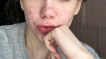 A cause d'un traitement contre l'acné, elle a failli devenir aveugle
