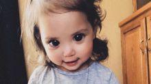 Condição rara faz garotinha de 2 anos ter pupilas gigantes e mãe faz desabafo