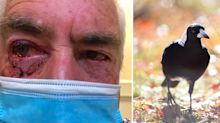 Man suffers horrifying injuries after magpie attacks BOTH his eyes