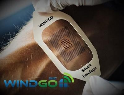 WINDGO Granted IoT Wearable Products Patent