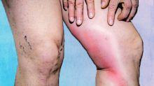 Phlebitis: Causes, Symptoms, Diagnosis & Treatment