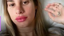 """Shantal mostra boca inchada após micropigmentação: """"Não é filtro"""""""