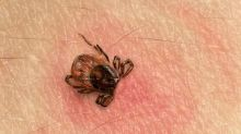 Powassan virus is deadlier than Lyme disease — but do you need to worry?