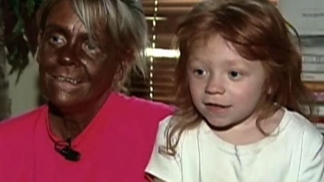 Mother accused of letting daughter, 6, use tanning bed