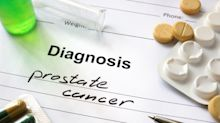 Prostate cancer set to become the most common form of the disease in the UK