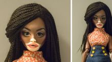 This Winnie Harlow-inspired doll with vitiligo is taking over social media