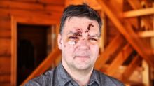 'I might not have come home': Flying ice injures Cobden man
