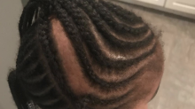 Toddler allegedly returns home from daycare with braid ripped off scalp: 'This is a lawsuit'