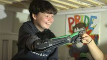 Hero Arm gives 'confidence' to amputees