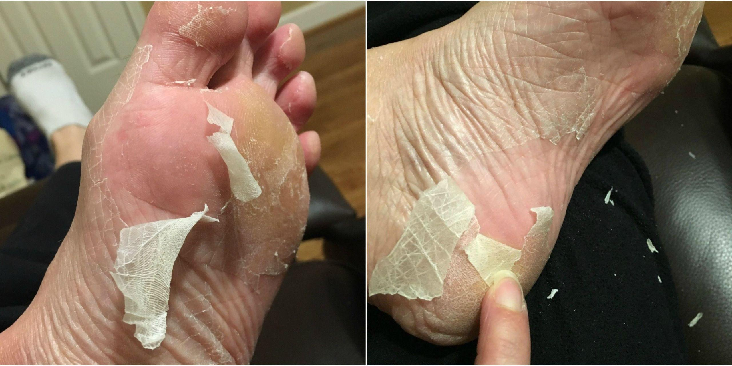"""Read This Before You Try the """"Baby Foot"""" Craze"""