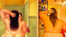 Ni sobrepeso ni celulitis, Itziar Castro ('Vis a Vis') tiene lipedema