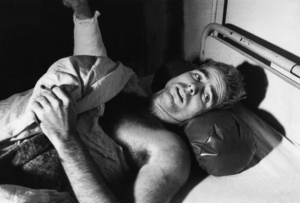 McCain is shown injured in a Hanoi hospital in 1967, a few days after he was captured as a prisoner of war (AFP Photo/)