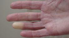 Esclerodermia, la afección que se confunde con artritis y convierte en 'piedra' a quien la padece