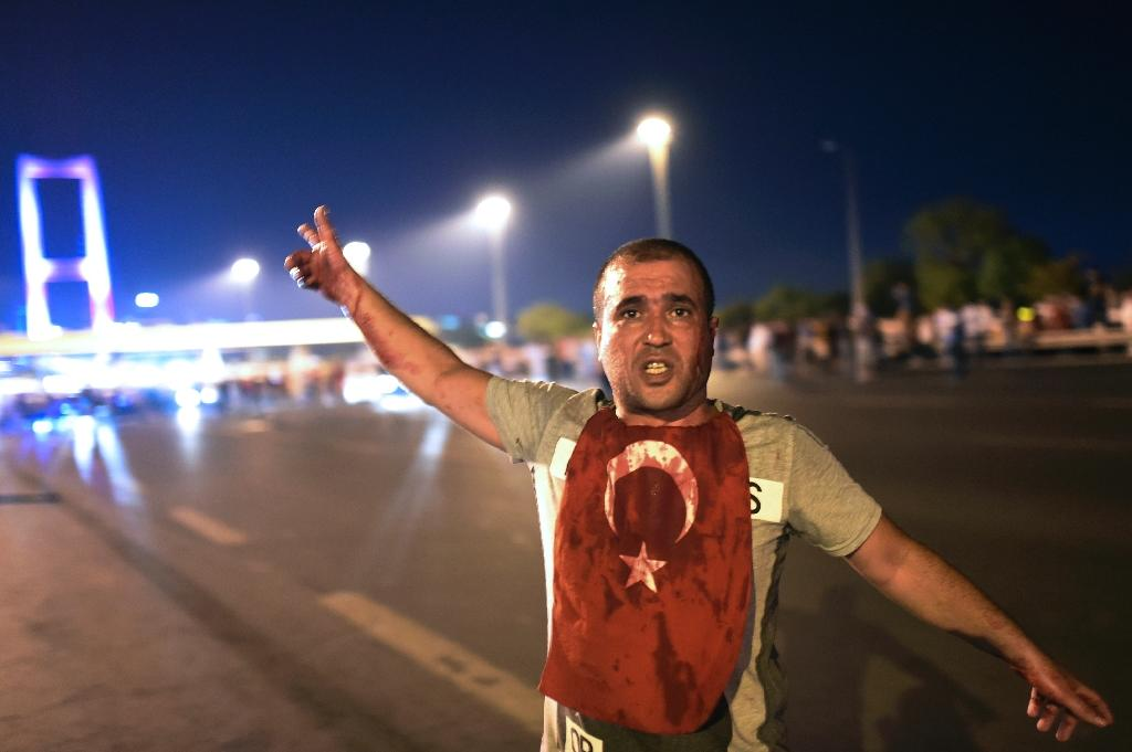 A man covered with blood points at the Bosphorus bridge as Turkish military clashes with people at the entrance to the bridge in Istanbul on July 16, 2016