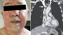 Doctors surprised by unexpected cause of man's red face