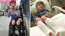 Sean's inspiring journey to walk on his own two feet