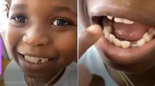 Giovanna Ewbank  mostra dente mole de  Bless