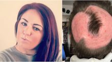 Woman lost her hair after using at-home pastel dye