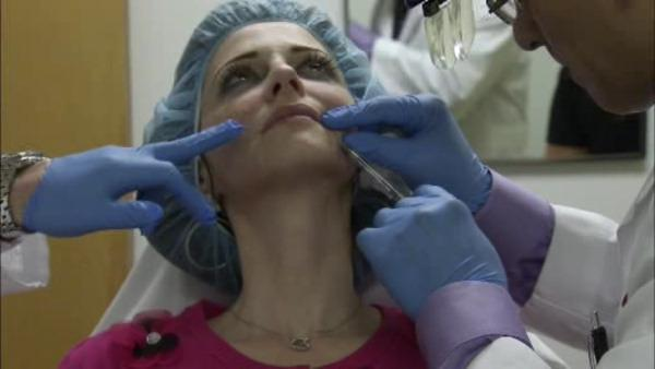 Vampire facelift becomes growing cosmetic trend