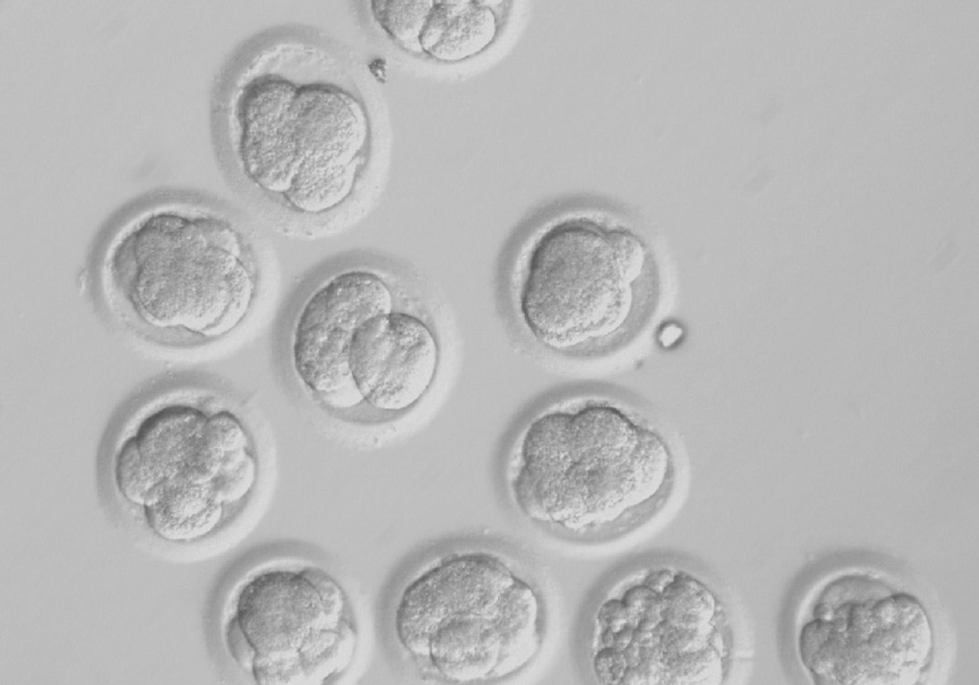 This undated image made available by the Oregon Health & Science University in May 2013 shows developing cloned human embryos. Scientists have finally recovered stem cells from cloned human embryos, a longstanding goal that could lead to new treatments for such illnesses as Parkinson's disease and diabetes. In the Wednesday, May 15, 2013 edition of the journal Cell, scientists at the Oregon Health & Science University report harvesting stem cells from six embryos. Shoukhrat Mitalipov, who led the research, said the success came not from a single technical innovation, but from revising a series of steps in the process. (AP Photo/Oregon Health & Science University)