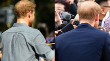 How to slow hair loss if, like Prince Harry, you're experiencing male-pattern baldness