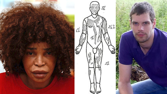 Woman jailed for acid attack on ex-boyfriend