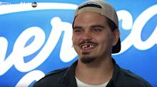 'American Idol' fan favorite flaunts surprising makeover: 'I got new teeth, guys!'