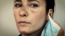 5 claves para evitar lesiones en la piel por el uso de mascarillas