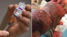 Grandmother's shocking illness after AstraZeneca vaccine