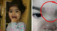 People Are Outraged After Moms Claim a Day Care Waxed Their Kids' Eyebrows