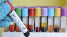 États-Unis: 80% des infections au VIH dues à des gens ignorant être séropositifs ou pas traités