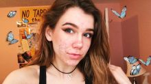 """Teen Claims Acne Medication Doxycycline Left Her """"Nearly Blind"""""""