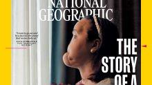 La historia de Katie Stubblefield, la persona más joven en recibir un trasplante de rostro en EEUU