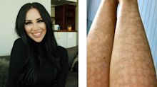 Laser hair removal procedure leaves woman with intense scarring