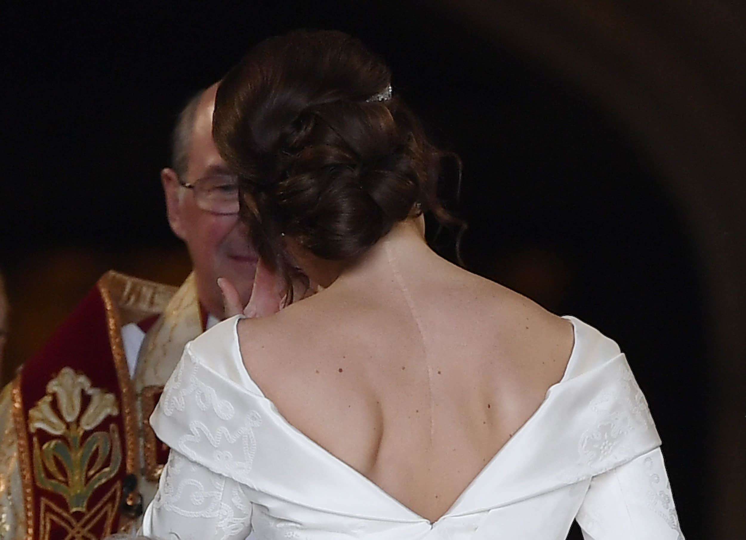 Princess Eugenie asked for her wedding dress to be cut low in the back so she could show off surgery scars