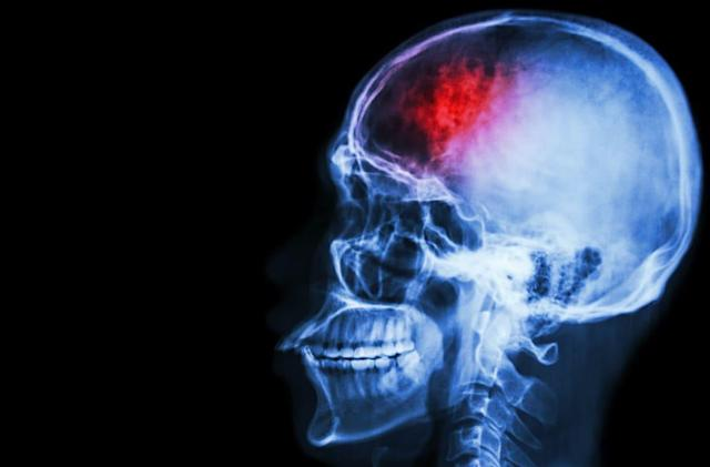 Medicine-covered nanoparticles could help stroke victims