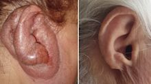 Doctors reveal cause of woman's foul-smelling 'turkey ear'