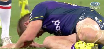 Storm at centre of NRL concussion controversy