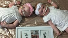 Formerly conjoined twins recovering after 'terrifying' separation