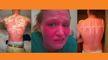 These horrifying sunburn photos will make you stock up on suncream fast