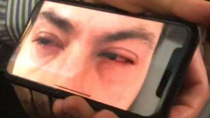 La extraña irritación en los ojos Peña Nieto