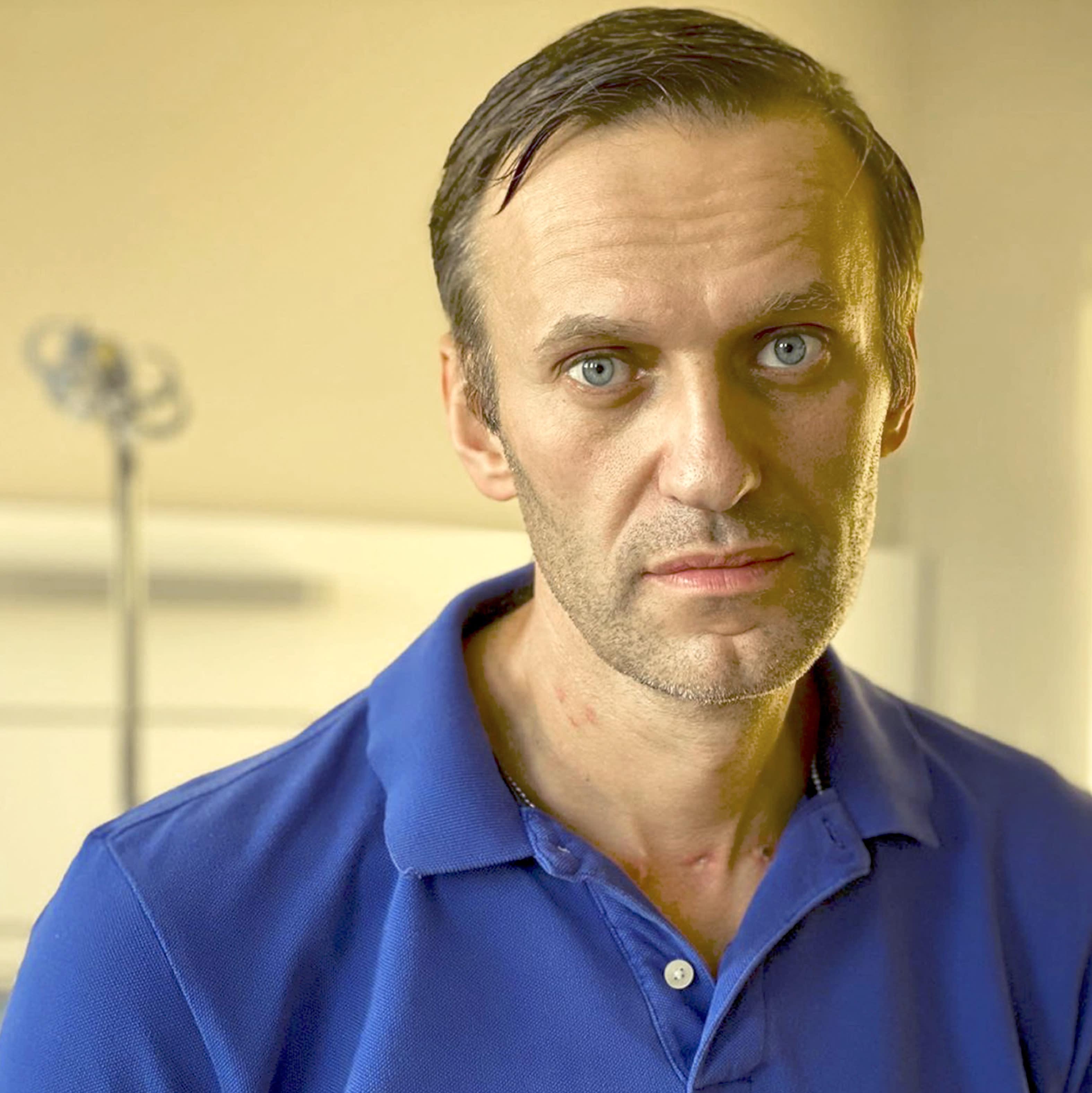 Opositor ruso envenenado, Alexei Navalny, sale del ...