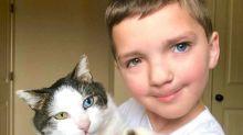 Garotinho encontra gato com a mesma condição rara que a sua e eles se tornaram melhores amigos