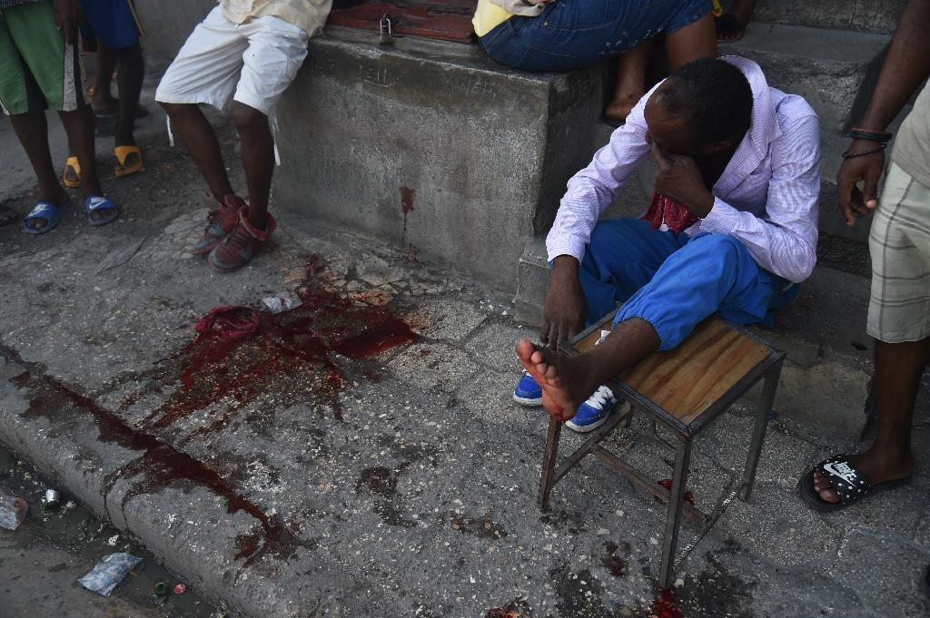 A man sits on stairs after being shot by men on a motorcycle, during the third day of strikes in Port-au-Prince, after at least three people died in mass protests against President Jovenel Moise (AFP Photo/HECTOR RETAMAL)