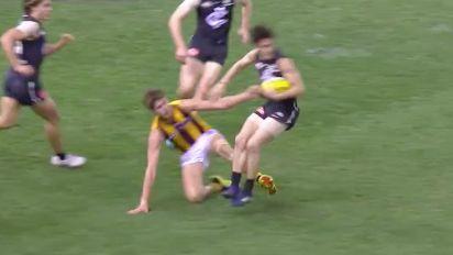 Hawks player's trip breaks Carlton star's leg