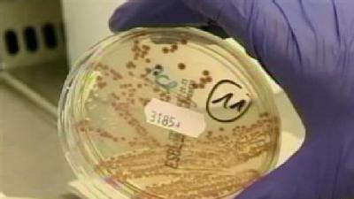 Md. Experts Weigh In On Europe E.Coli Outbreak