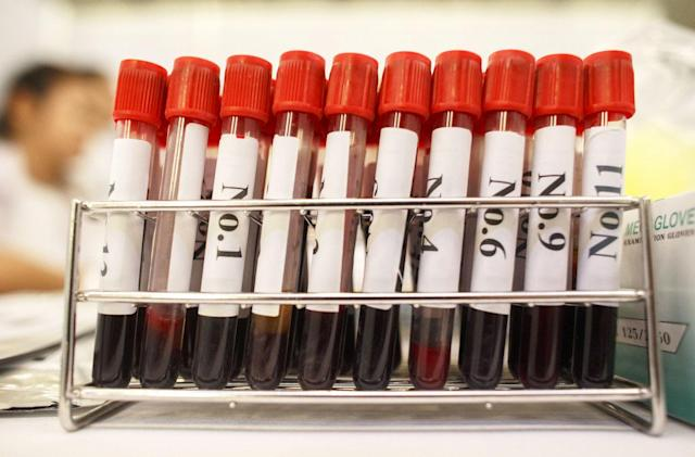 Australian researchers developed a blood test for Parkinson's