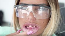 Katie Price compares herself to Bond villain as she shows off real teeth ahead of veneer replacement