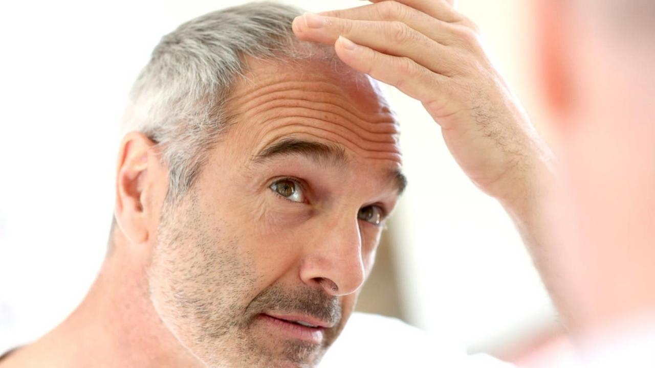 Stress of COVID-19 causing hair loss Video